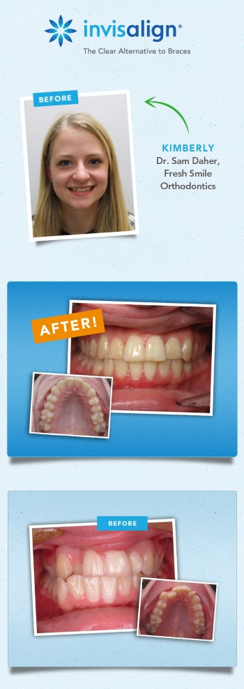 invisalign results fix crooked teeth kimberly