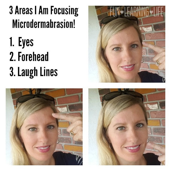 3 Areas I Am Focusing Microdermabrasion!